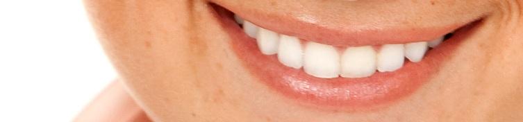Licówki stomatologiczne
